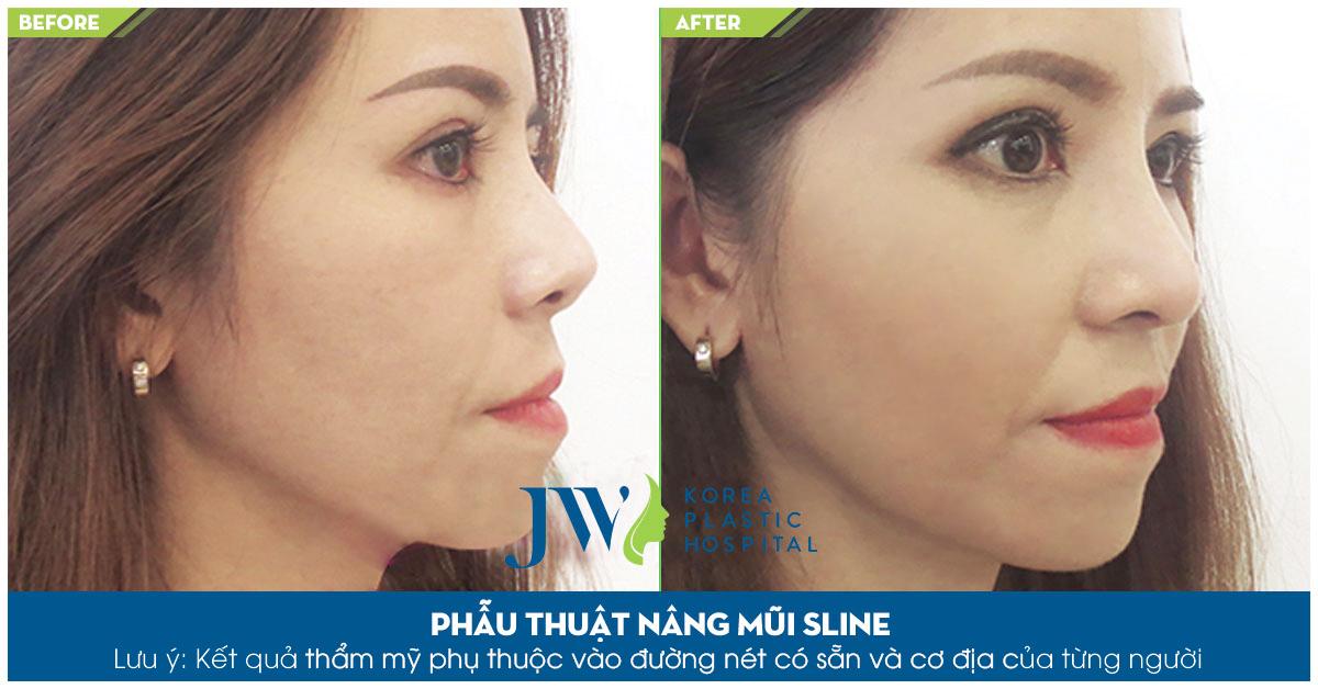 Sau khi nâng mũi tại JW đầu mũi tròn đều, sống mũi cao đẹp tự nhiên