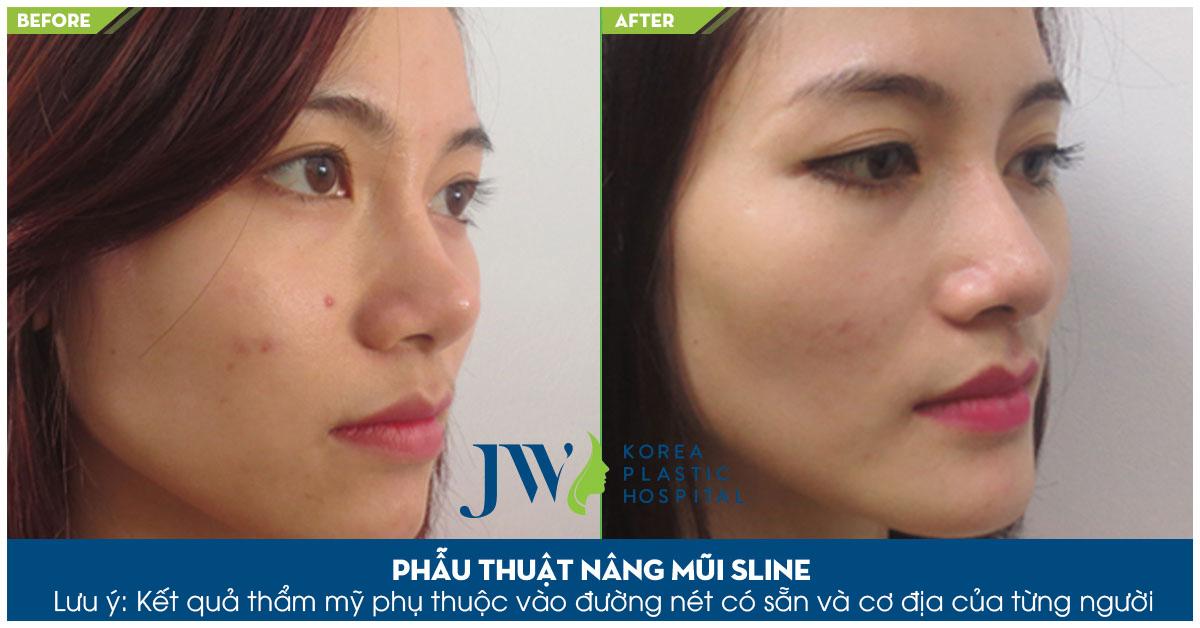 Chiếc mũi cao thẳng, mềm mại sau khi áp dụng dịch vụ nâng mũi tại JW
