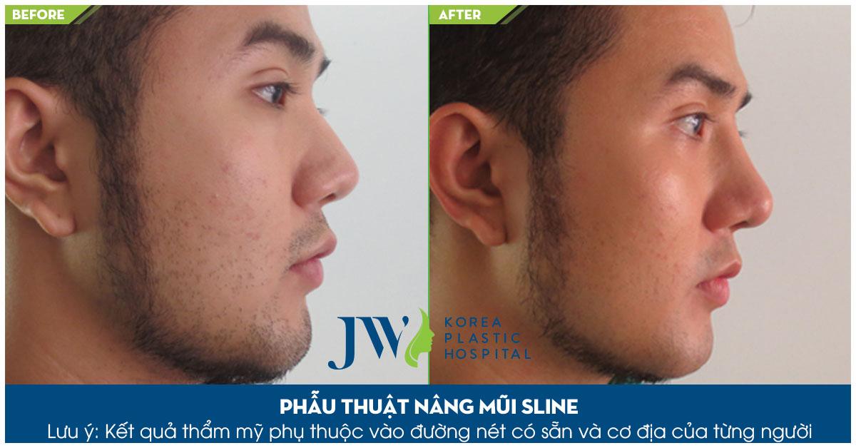 hình ảnh trước và sau phẫu thuật mũi l line
