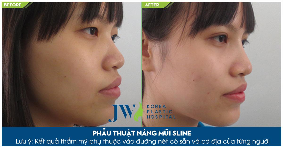 Chăm sóc chiếc mũi sau nâng để hoàn thiện mũi đẹp