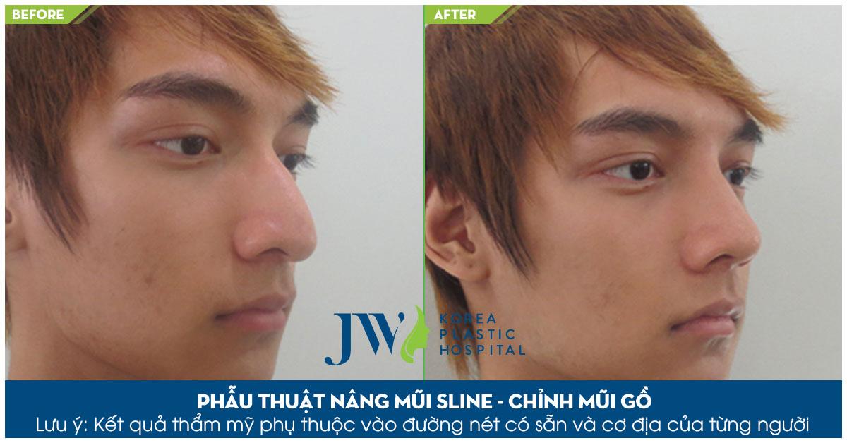 Chiếc mũi cao thẳng, mạnh mẽ sau khi sửa mũi tại JW