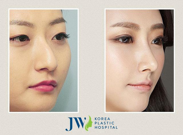 Sửa mũi diều hâu là một trong những phương pháp giúp bạn sở hữu dáng mũi đẹp với đường cong mềm mại hơn