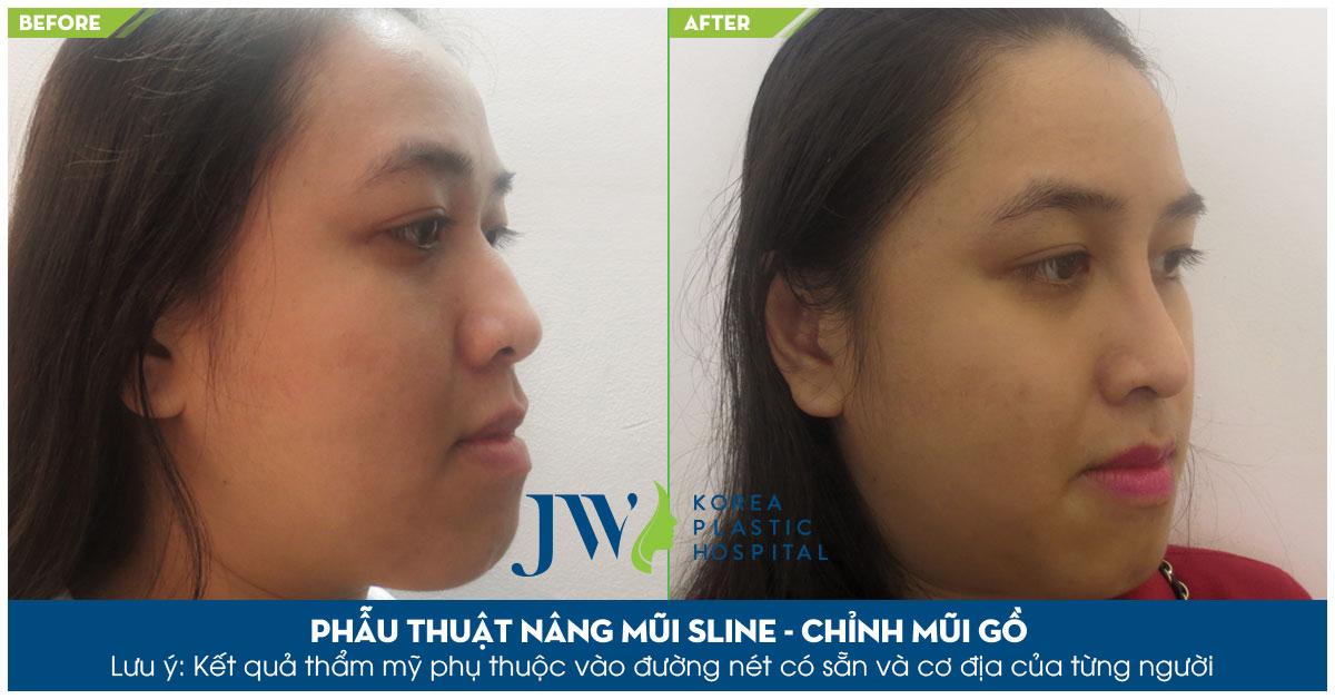 Công nghệ S line cho phép chỉnh hình toàn bộ cấu trúc mũi khắc phục tình trạng mũi bị gồ