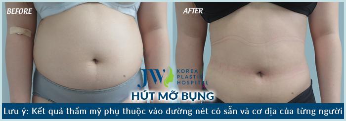kết quả giảm mỡ bụng hiệu quả tại jw