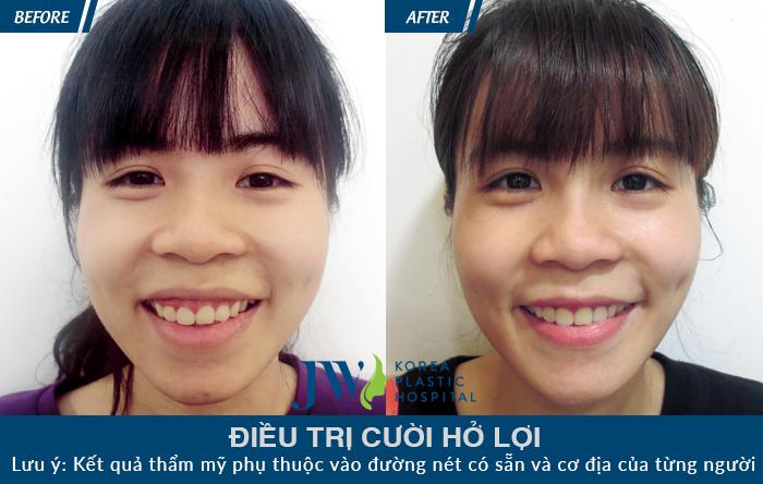 Khách hàng điều trị cười hở lợi bằng phương pháp cắt cung lợi một cách nhẹ nhàng