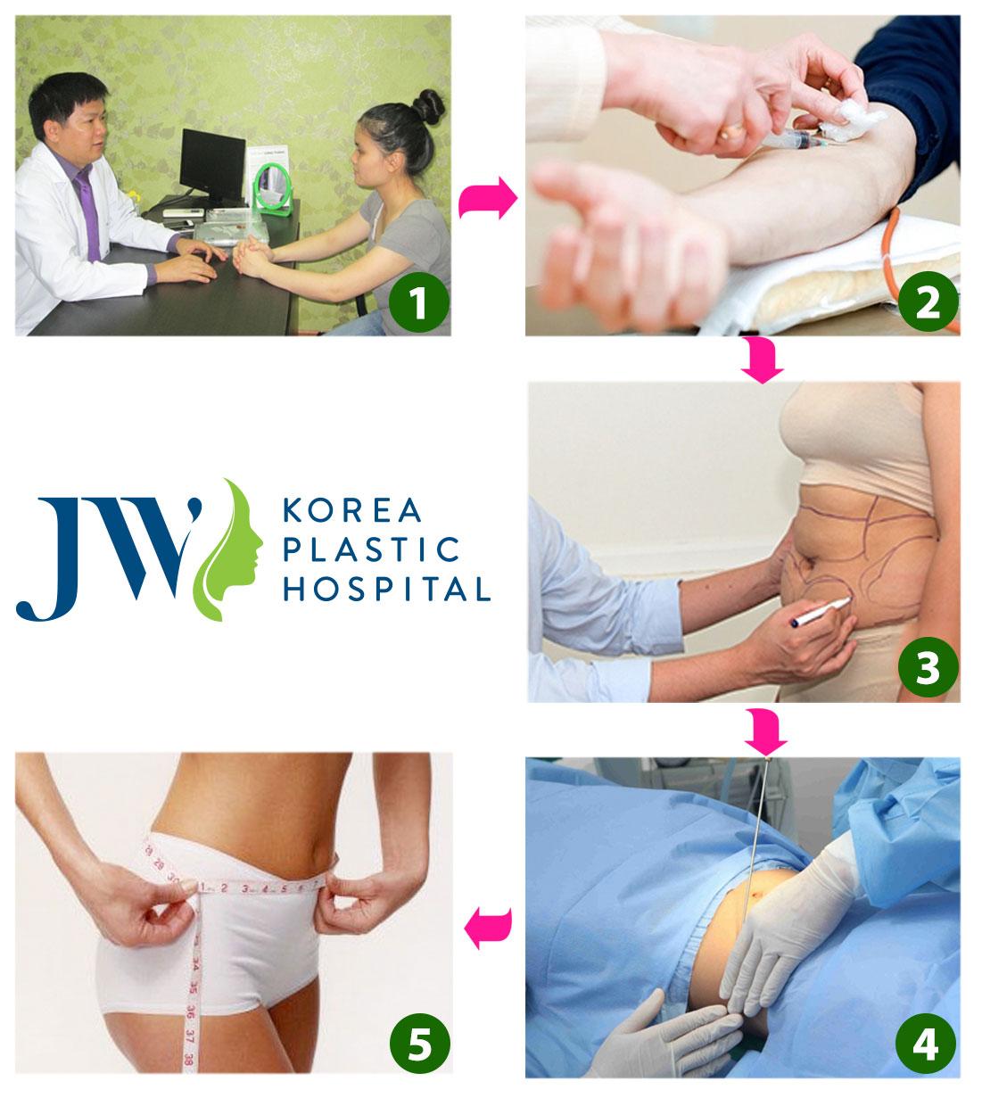 Quy trình hút mỡ toàn thân tại JW