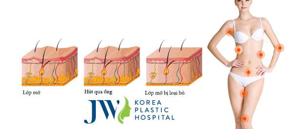 Nhờ kết hợp đi sóng siêu âm RF, da trở nên căng mịn
