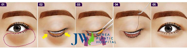 Quy trình loại bỏ mỡ mí mắt