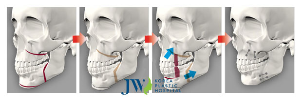 Hình ảnh minh họa phẫu thuật hàm hô