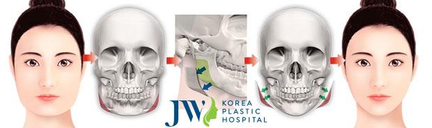Sau phẫu thuật gương mặt sẽ có dáng V line thon gọn