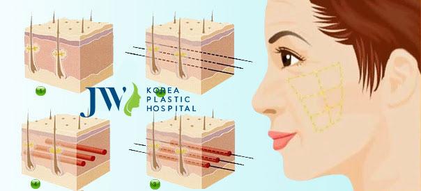Quy trình căng da mặt bằng chỉ (ảnh mô phỏng)