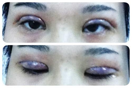 cắt mí mắt bị biến chứng