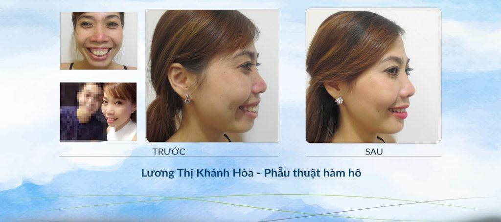 Lương Thị Khánh Hòa