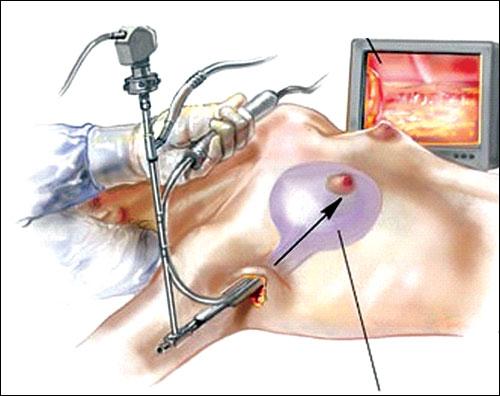 Quy trình đưa túi ngực vào khoang ngực