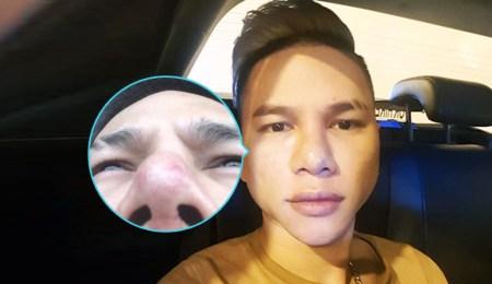Hoàng Tôn với chiếc mũi hỏng
