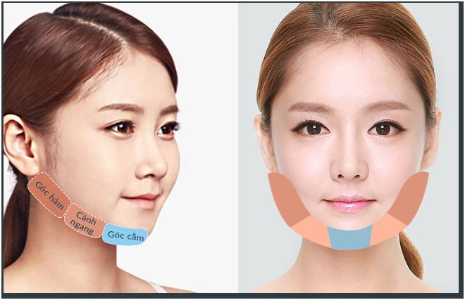 Phẫu thuật khuôn mặt V line
