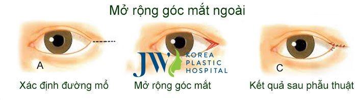 mo-rong-go-mat-ngoai