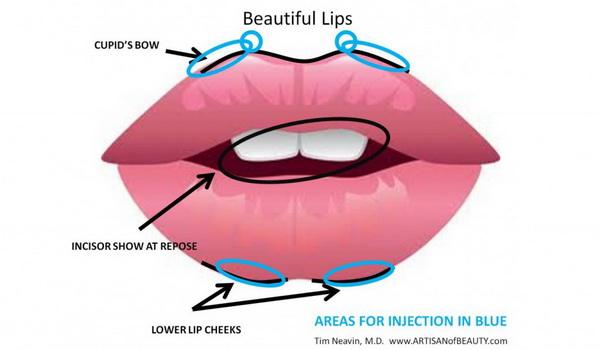 Quy trình thu mỏng môi