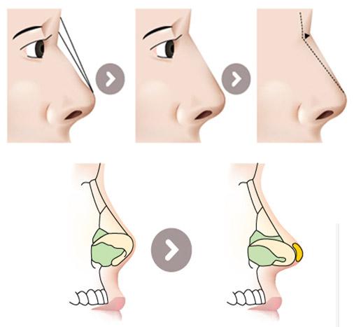 Phẫu thuật nâng mũi cho nam giới