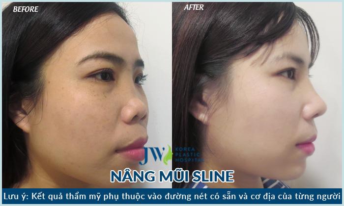 nâng mũi s line khắc phục biến chứng sau 15 năm