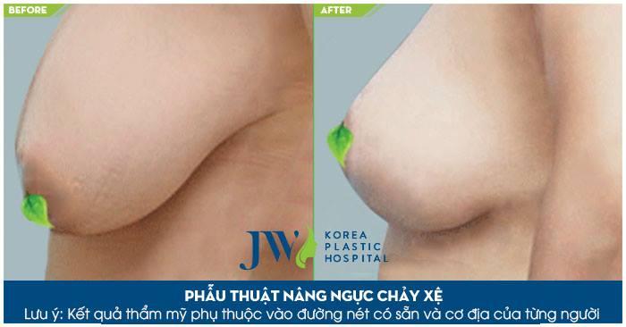 Phẫu thuật nâng ngực chảy xệ