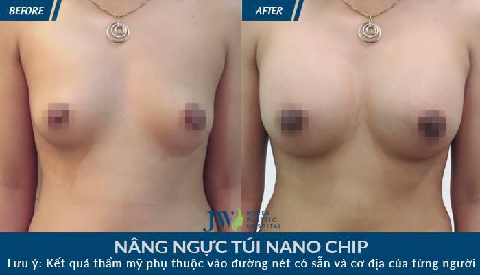 Nâng ngực Nano Chip 3D Motiva