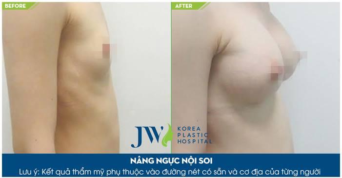 Phẫu thuật nâng ngực nội soi 3D