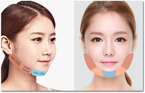 Xương quai hàm được chia là 3 phần: Góc hàm, cành ngang, góc cằm