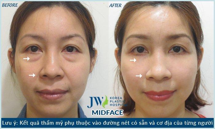 Kết quả hình ảnh cho midface 3in 1 jw