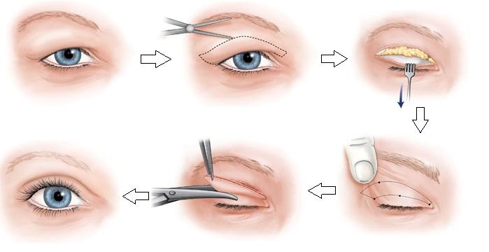 Mô phỏng những công đoạn cắt mí mắt