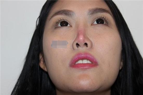 Phi Thanh Vân bị biến chứng sau nâng mũi