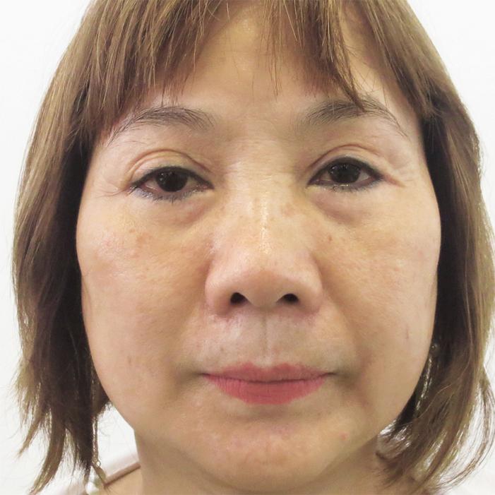 biến chứng khi cắt mí mắt