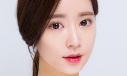 Phẫu thuật Midface 3 trong 1