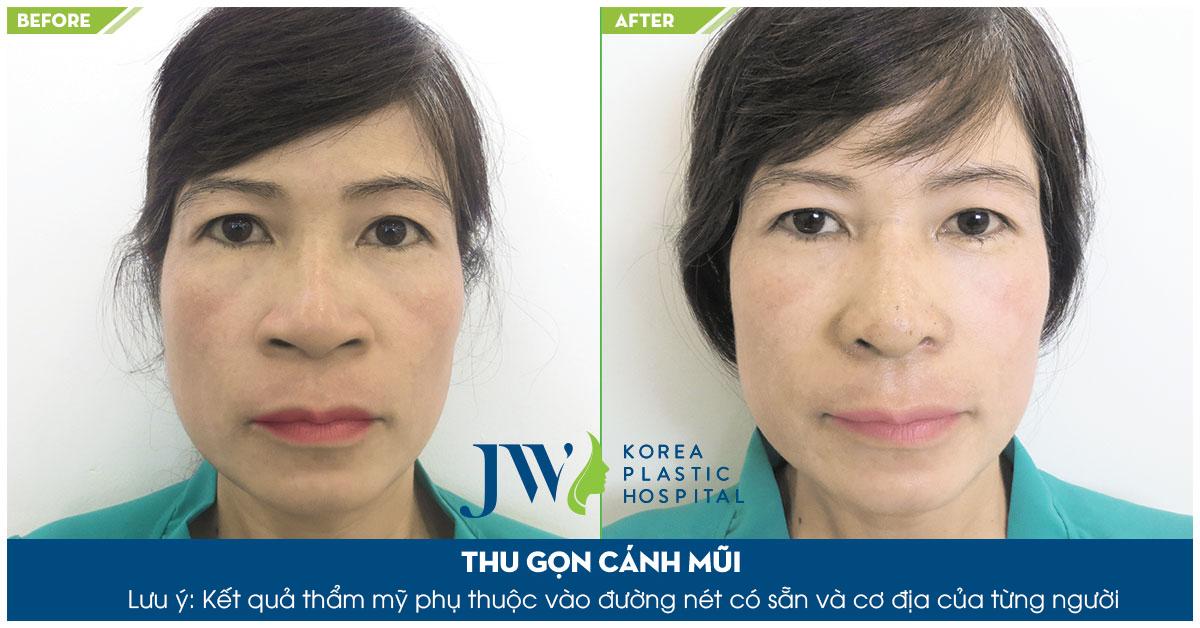 trước và sau khi thu gọn cánh mũi tại jw