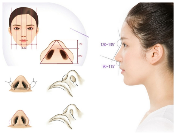 Phẫu thuật thu gọn cánh mũi