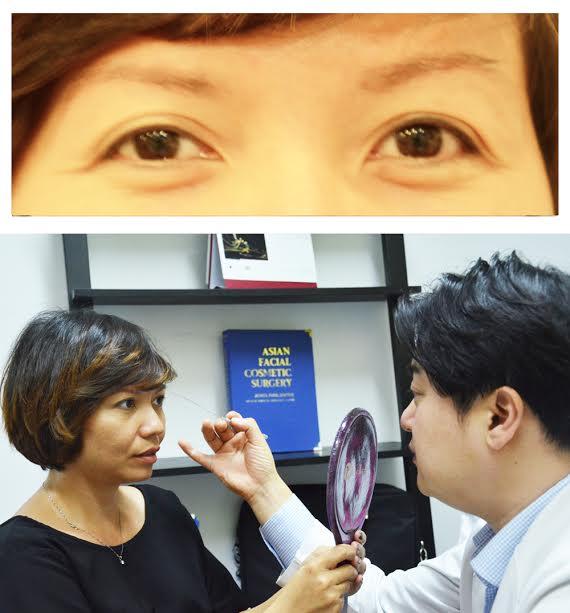 Lấy mỡ bọng mắt bao lâu thì lành