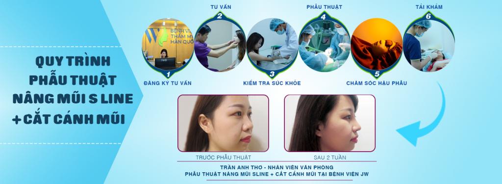 Quy trình nâng mũi tại bệnh viện Thẩm mỹ Hàn Quốc  JW