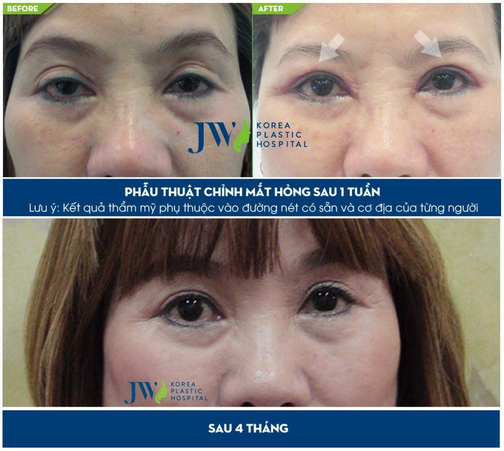 Mắt của chị L.L Hoa trước và sau phẫu thuật tại Bệnh viện JW