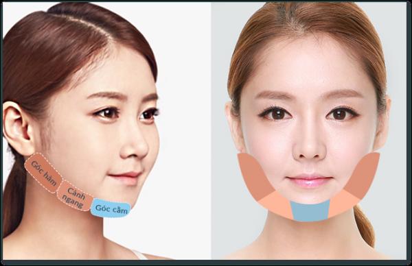 Gọt mặt V Line giá bao nhiêu để gương mặt thanh tú chuẩn Hàn?