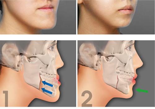 Hàm móm  là một trong những khuyếm khuyết phức tạp của răng miệng