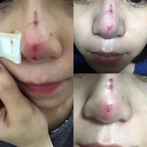 Mũi bị thủ da đầu mũi, gây viêm nhiễm sau khi nâng mũi
