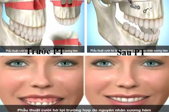Các phương pháp phẫu thuật cười hở lợi