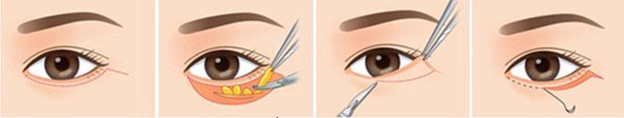 Đường phẫu thuật cắt mí mắt dưới sẽ nằm dọc theo nếp mí dưới, sát bờ mí nhằm che giấu sẹo.
