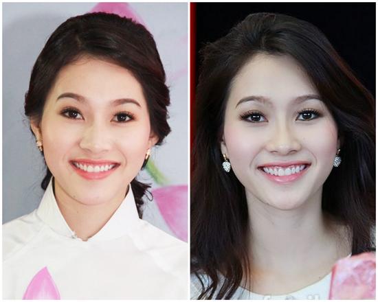 Hoa hậu Đặng Thu Thảo cũng có nụ cười hở lợi