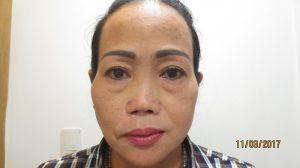 Mũi của chị Thu Loan thay đổi sau khi phẫu thuật tại JW