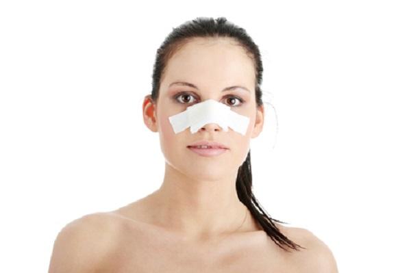 Có nhiều lý do khiến  việc nâng mũi không hoàn hảo (ảnh minh họa)