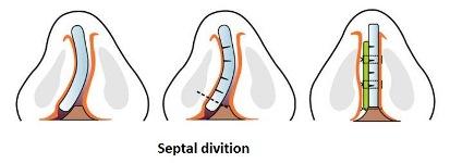 Phần sụn vách ngăn bị vẹo được chỉnh hình và gia cố bằng sụn tự thân, giúp chiếc mũi thẳng