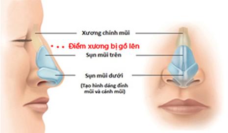 Cấu trúc xương mũi bị gồ