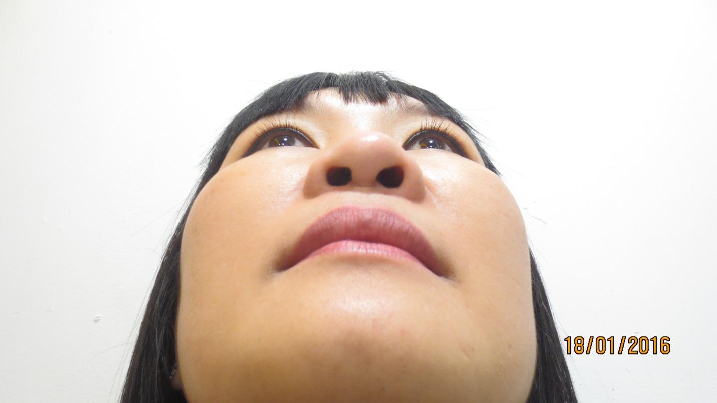 Hình ảnh khách hàng có mũi chiếc mũi lệch trục bất cân xứng