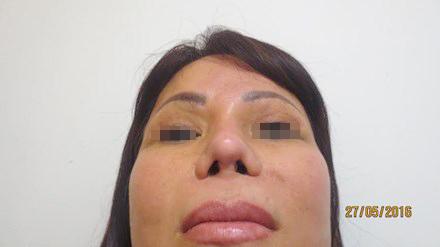 Chiếc mũi bị phẫu thuật hỏng của chị X.